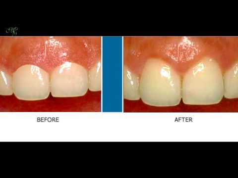 MG Dentistry Practice Area - Laser Dentistry