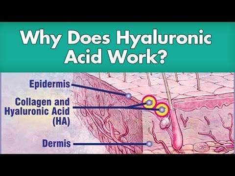 hyaluronic acid does it work