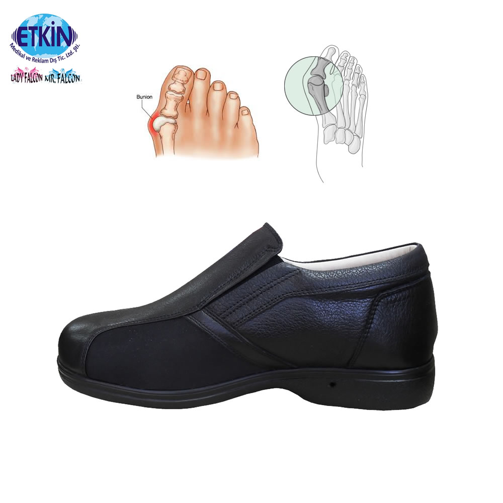 Shoes Footwear Painless Hallux Newest Models for Mens Bunions Casual Walking Valgus 5F7W7f