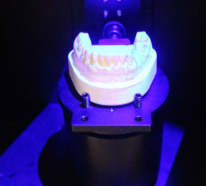 Dental Software Exocad Wholesale, Home Suppliers - Alibaba