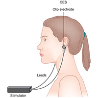 Cranial Electrotherapy Stimulation Devices Exporter in India