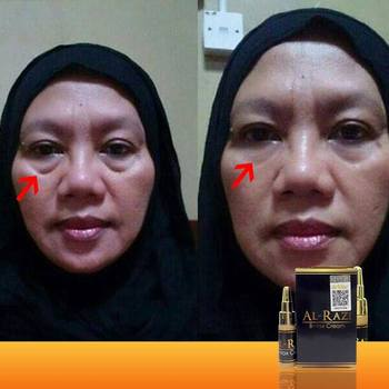 Alrazi Microcream - Buy 2minutes Instantly,Eyebag Removal,Anti-wrinkle  Product on Alibaba com