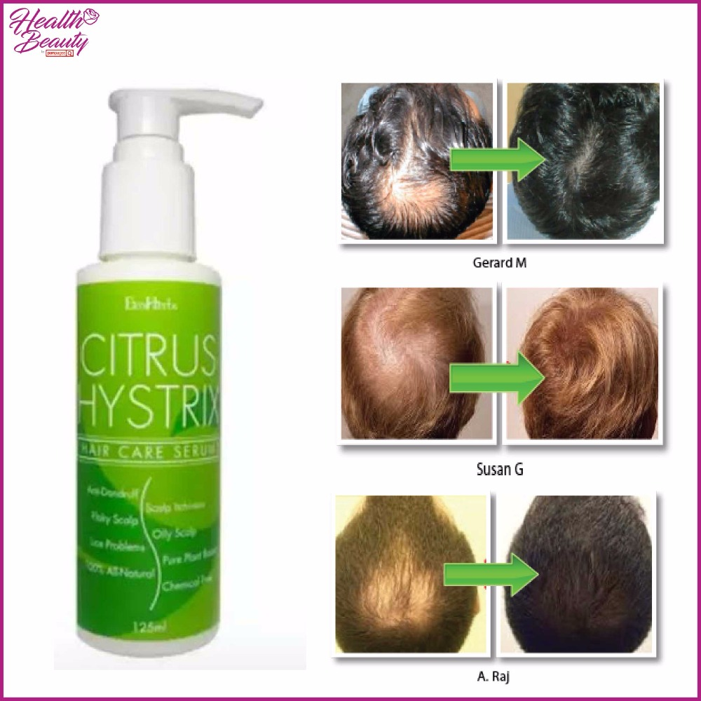Malaysia Anti Dandruff Oily Itchy Dry Flaky Scalp Lice Problems Citrus Hystrix Hair Care Serum